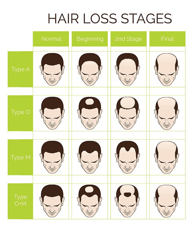Typy a fázy vypadávania vlasov u mužov